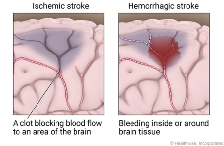 Ischemic stroke showing clot blocking blood clot blocking blood flow to area of brain and a hemorrhagic stroke showing bleeding inside or around brain tissue