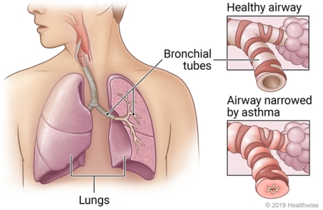 Lungs in chest showing bronchial tubes in left lung, with detail of healthy airway and airway inflamed by asthma