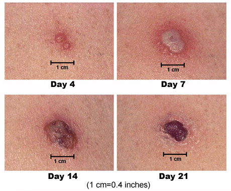 Typical skin reaction at the site of a smallpox vaccine injection