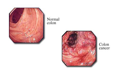 Sigmoidoscopy Cancer In The Colon Michigan Medicine
