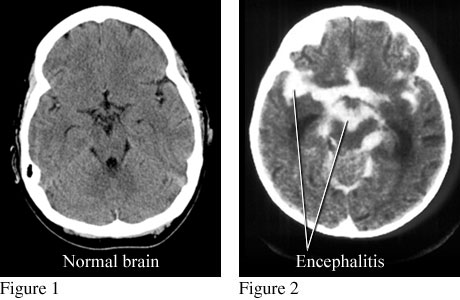 CT scans of normal brain and brain with encephalitis