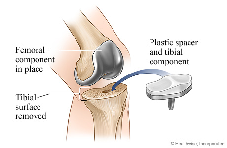 Knee Replacement Surgery University Of Michigan Health