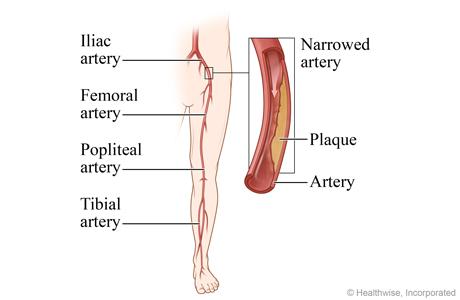 angioplasty for peripheral arterial disease of the legs | michigan medicine  michigan medicine