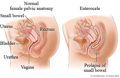 Picture of normal female pelvic anatomy compared to small bowel prolapse