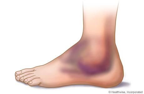 Как разработать ногу после операции на коленном суставе - f6