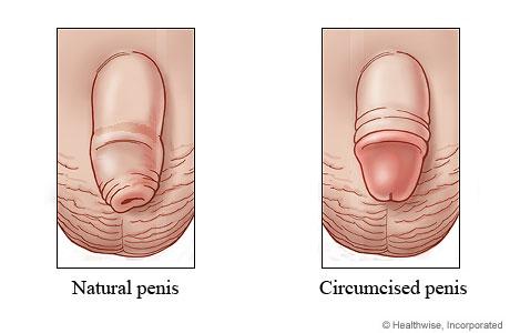 What Does A Circumsised Penis Look Like 41
