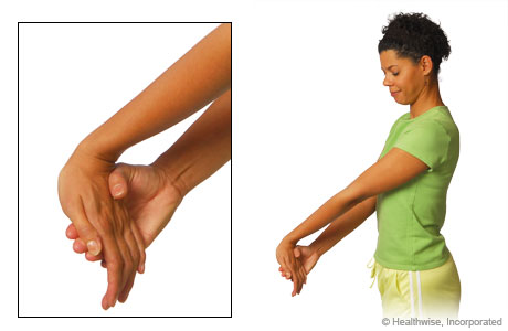 The wrist flexor stretch