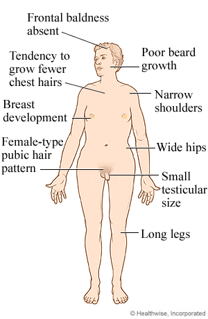 Syndrome is a genetic disorder that affects males klinefelter syndrome