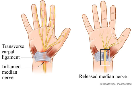 Picture of open carpal tunnel release surgery