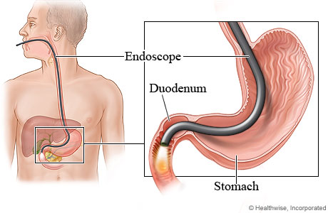 any bleeding gi nursing paper research The lifespan, and to help plan, individualize, and document care for more than   care plan case studies  upper gastrointestinal/esophageal bleeding, 281.