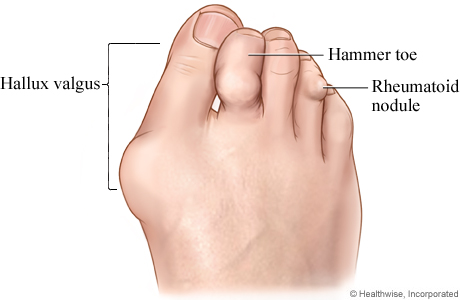 Picture of rheumatoid arthritis in the foot