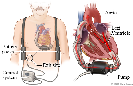 Location of VAD pump, battery packs, and controller, with detail of VAD pumping blood from heart's left ventricle to the aorta