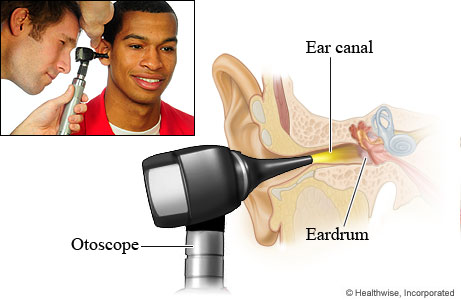 What Is A Good Otoscope For Home Use