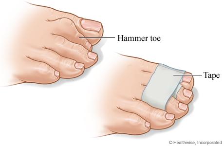 hammer toe pain
