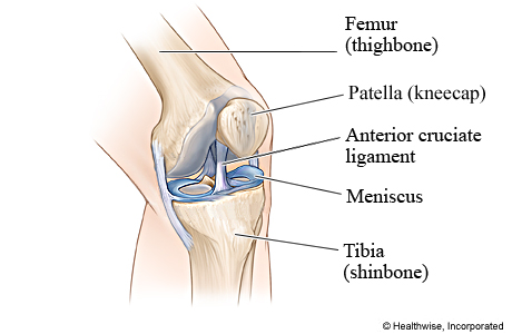 Picture of the anterior cruciate ligament (ACL)