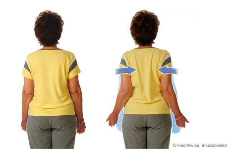 Exercises to Do After Mastectomy | University of Michigan ...