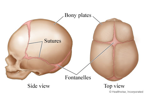 Skull Sutures And Bony Plates In Fetuses And Infants