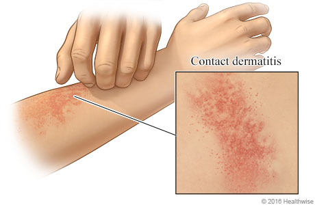 Contact dermatitis on an arm, with close-up of rash