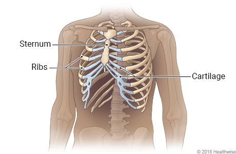 Skeletal view of rib cage, showing sternum, ribs, and cartilage