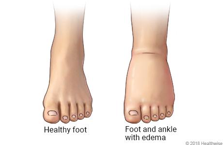 Normal foot and ankle, and foot and ankle with edema