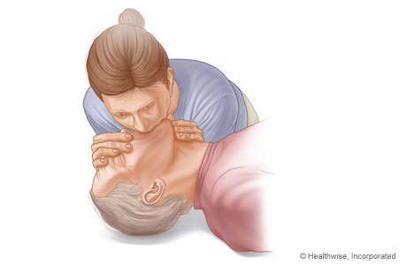 Chest Compression-Only Cardiopulmonary Resuscitation ...