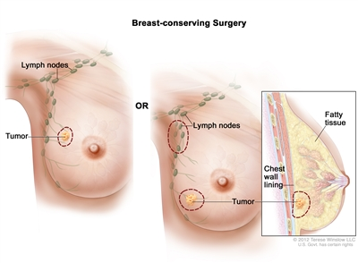 Breast Cancer Treatment During Pregnancy Pdq Treatment Patient Information Nci Michigan Medicine