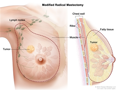Modified radical mastectomy; drawing shows the removal of the breast, most or all of the lymph nodes under the arm, the lining over the chest muscles and sometimes part of the chest wall muscles.