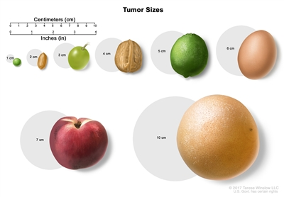 Tumor size compared to everyday objects; shows various measurements of a tumor compared to a pea, peanut, walnut, and lime
