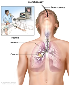Bronchoscopy; drawing shows a bronchoscope inserted through the mouth, trachea, and bronchus into the lung; lymph nodes along trachea and bronchi; and cancer in one lung. Inset shows patient lying on a table having a bronchoscopy.