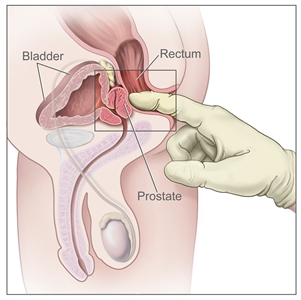 Digital rectal exam; drawing shows a side view of the male reproductive and urinary anatomy, including the prostate, rectum, and bladder; also shows a gloved and lubricated finger inserted into the rectum to feel the prostate.