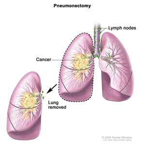 Pneumonectomy; drawing shows the trachea, lymph nodes, and lungs, with cancer in one lung. The removed lung with the cancer is shown.