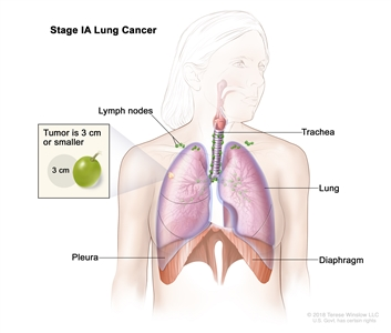 Two-panel drawing of stage I non-small cell lung cancer. First panel shows stage IA with cancer (3 cm or less) in the right lung; also shown are the right main bronchus, trachea, lymph nodes, bronchioles, and diaphragm. Second panel shows stage IB with cancer (more than 3 cm but not more than 5 cm) in the left lung and in the left main bronchus; the carina is also shown. Inset shows cancer that has spread from the lung into the innermost layer of the lung lining; a rib is also shown.