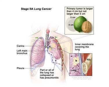 Two-panel drawing of stage IIA non-small cell lung cancer. First panel shows cancer (5 cm or less), and cancer in the right main bronchus and lymph nodes; also shown are the trachea, bronchioles, and diaphragm. Second panel shows cancer (more than 5 cm but not more than 7 cm), and cancer in the left main bronchus; also shown are the trachea, lymph nodes, bronchioles, and diaphragm. Insets show cancer that has spread from the lung into the innermost layer of the lung lining; a rib is also shown.