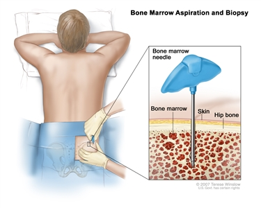Bone marrow aspiration and biopsy; drawing shows a patient lying face down on a table and a bone marrow needle being inserted into the hip bone. Inset shows the bone marrow needle being inserted through the skin into the bone marrow of the hip bone.