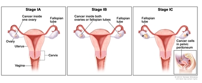 Three-panel drawing of stage IA, IB, and IC; the first panel (stage IA) shows cancer inside one ovary. The second panel (stage IB) shows cancer inside both ovaries. The third panel (stage IC) shows cancer inside both ovaries, and one ovary has a ruptured capsule. An inset shows cancer cells in the pelvic peritoneum. Also shown are the fallopian tubes, uterus, cervix, and vagina.