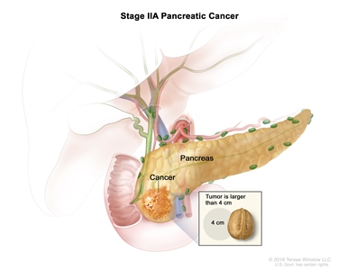 Stage IIA pancreatic cancer; drawing shows cancer in the pancreas and the tumor is larger than 4 centimeters. An inset shows 4 centimeters is about the size of a walnut.