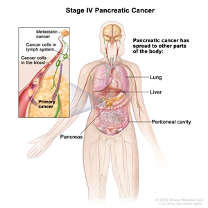 Stage IV pancreatic cancer; drawing shows other parts of the body where pancreatic cancer may spread, including the lung, liver, and peritoneal cavity. An inset shows cancer cells spreading from the pancreas, through the blood and lymph system, to another part of the body where metastatic cancer has formed.