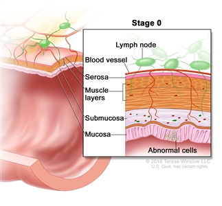 Stage 0 colon/rectal carcinoma in situ; shows a cross-section of the colon/rectum. An inset shows the layers of the colon/rectum wall with abnormal cells in the mucosa layer. Also shown are the submucosa, muscle layers, serosa, a blood vessel, and lymph nodes.