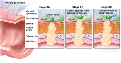 Stage II colorectal cancer; shows a cross-section of the colon/rectum and a three-panel inset. Each panel shows the layers of the colon/rectum wall: mucosa, submucosa, muscle layers, and serosa. Also shown are a blood vessel and lymph nodes. First panel shows stage IIA with cancer in the mucosa, submucosa, muscle layers, and serosa. Second panel shows stage IIB with cancer in all layers and spreading through the serosa. Third panel shows stage IIC with cancer spreading to nearby organs.
