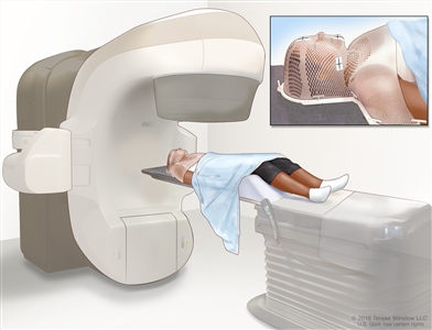External-beam radiation therapy of the head and neck; drawing shows a patient lying on a table under a machine that is used to aim high-energy radiation at the cancer. An inset shows a mesh mask that helps keep the patient's head and neck from moving during treatment. The mask has pieces of white tape with small ink marks on it. The ink marks are used to line up the radiation machine in the same position before each treatment.