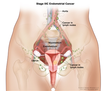 Stage IIIC endometrial cancer shown in a cross-section drawing of the uterus, cervix, fallopian tubes, ovaries, and vagina. Also shown are the lymph nodes in the pelvis and the aorta with nearby lymph nodes. Cancer is shown in the endometrium and myometrium of the uterus and in lymph nodes in the pelvis and near the aorta.