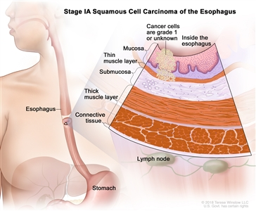 Stage IA squamous cell cancer of the esophagus; drawing shows the esophagus and stomach. An inset shows cancer cells in the mucosa and submucosa layers of the esophagus wall. Also shown are the muscle and connective tissue layers of the esophagus wall and lymph nodes.