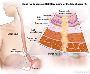 Stage IIA squamous cell cancer of the esophagus (2); drawing shows the esophagus and stomach. An inset shows the layers of the esophagus wall with cancer in the mucosa, submucosa, muscle, and connective tissue layers. Also shown are lymph nodes.