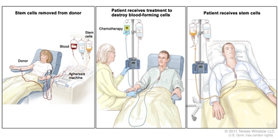 Stem cell transplant; (Panel 1): Drawing of stem cells being removed from a patient or donor. Blood is collected from a vein in the arm and flows through a machine that removes the stem cells; the remaining blood is returned to a vein in the other arm. (Panel 2): Drawing of a health care provider giving a patient treatment to kill blood-forming cells. Chemotherapy is given to the patient through a catheter in the chest. (Panel 3): Drawing of stem cells being given to the patient through a catheter in the chest.