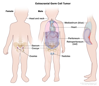 Extracranial germ cell tumor; drawing shows parts of the body where extracranial germ cell tumors may form, including the head and neck, mediastinum (the area between the lungs, shown in blue), retroperitoneum (the area behind the abdominal organs, shown in red), sacrum, coccyx, testicles (in males), and ovaries (in females). Also shown are the heart and peritoneum.