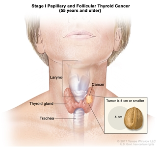 Stage I papillary and follicular thyroid cancer in patients 45 years and older; drawing shows cancer in the thyroid gland. The tumor is 2 centimeters or smaller. Also shown are the larynx and trachea.