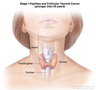 Stage I papillary and follicular thyroid cancer in patients younger than 45 years; drawing shows cancer in the thyroid gland. Also shown are the larynx and trachea.
