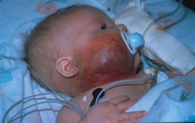 Photograph showing a Kaposiform hemangioendothelioma lesion on the right side of the face and neck.