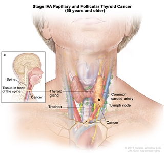Stage IVA papillary and follicular thyroid cancer in patients 45 years and older; drawing shows cancer that has spread from the thyroid gland to the larynx, the esophagus, the left recurrent laryngeal nerve, the trachea, and a lymph node on one side of the neck. Also shown is the right recurrent laryngeal nerve.