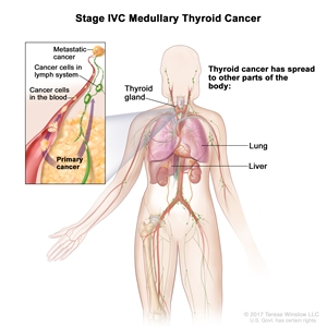 Stage IVC medullary thyroid cancer; drawing shows other parts of the body where thyroid cancer may spread, including the lymph nodes, lung, and bone. An inset shows cancer cells spreading from the thyroid, through the blood and lymph system, to another part of the body where metastatic cancer has formed.